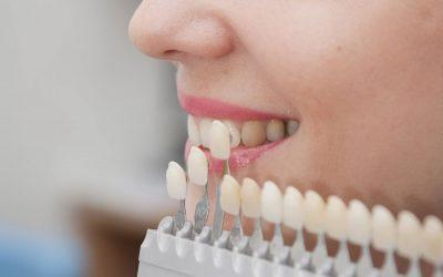 Восстановление зубов: методики и их особенности