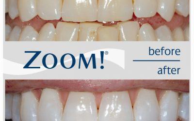 Отбеливание клиническое (кабинетное) ZOOM!